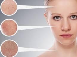 Лікування акне та вугрової хвороби ефективно в клініці Гравімед ...